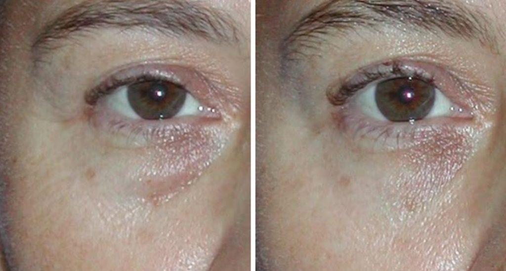 Corrección de ojeras y bolsas palpebrales